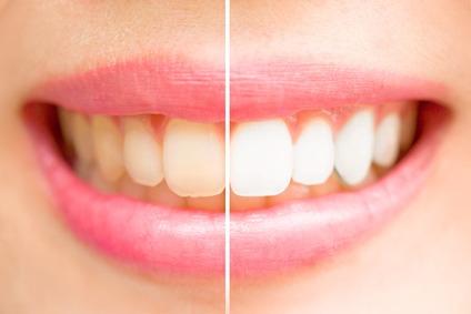 Whitening Zahnpasta